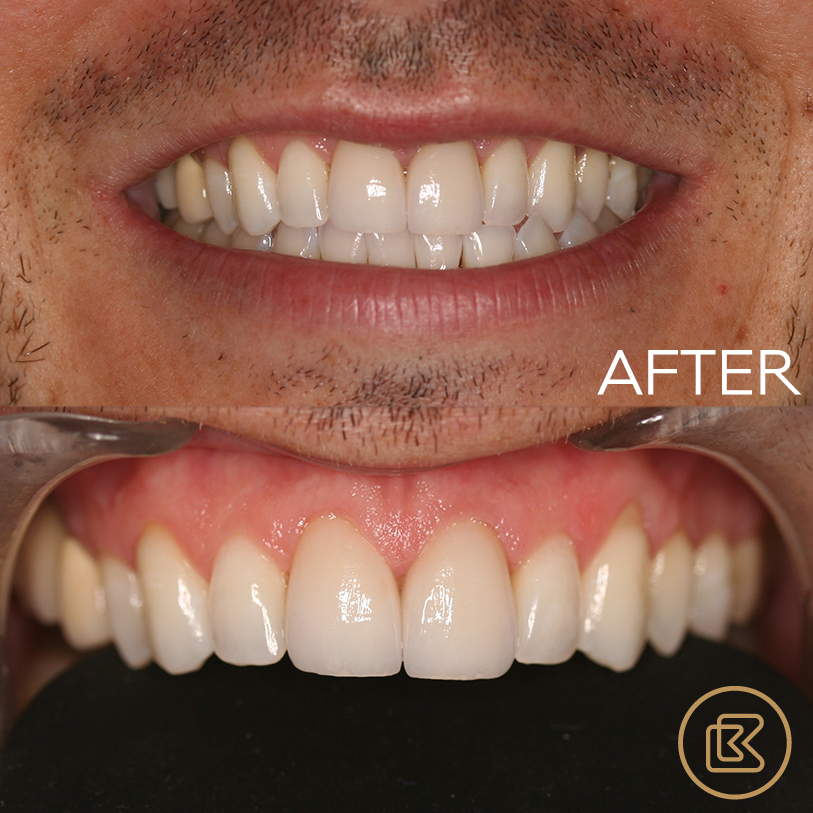 Treatment: Front crowns replaced with EMax
