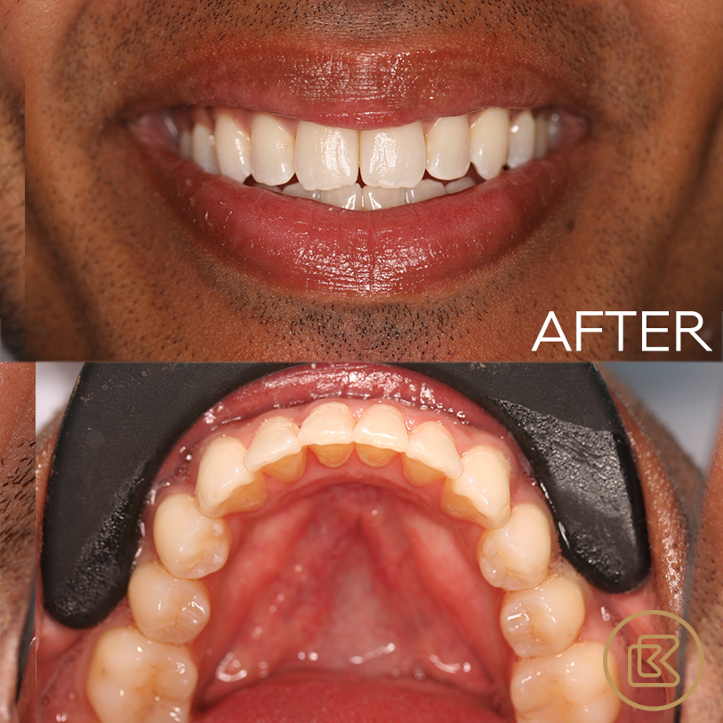 Treatment 10 months Invisalign